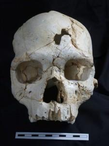 skull with trauma